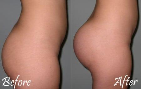 Pics Of Butt Implants 4