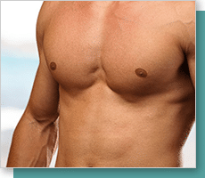 MALE BREAST REDUCTION/GYNECOMASTIA