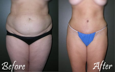 Tummy Tuck ( Abdominoplasty)