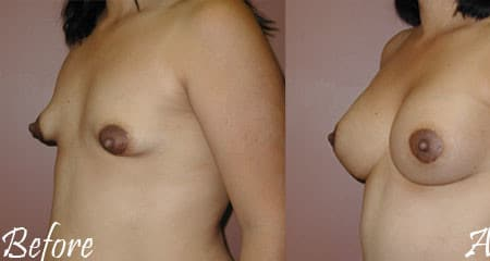 Revisional Breast Surgery